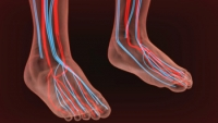 Causes of Poor Circulation