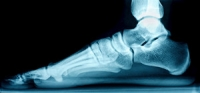 What Causes Flat Feet and How Can It Be Treated?