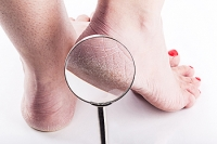 The Causes of Cracked Heels